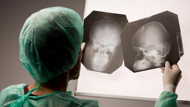 Рентген головы человека